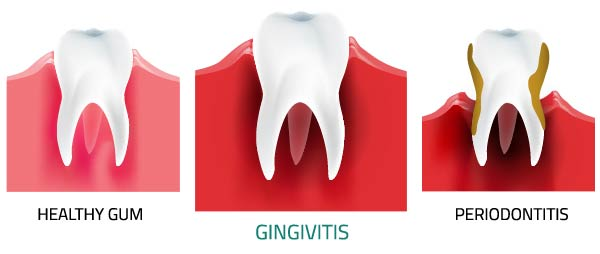 Giovanni Arenas - Gingivitis